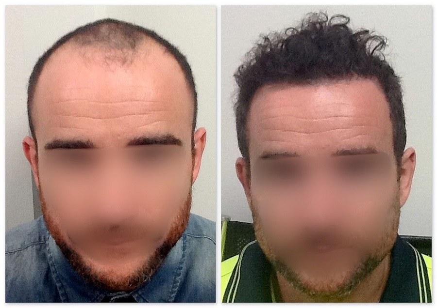 بهترین روش کاشت مو، کاشت مو sut، بهترین روش کاشت مو چیست، بهترین روش کاشت مو در ایران، بهترین روش کاشت مو در جهان، کاشت مو کلینیک اکسیر جوانی مشهد