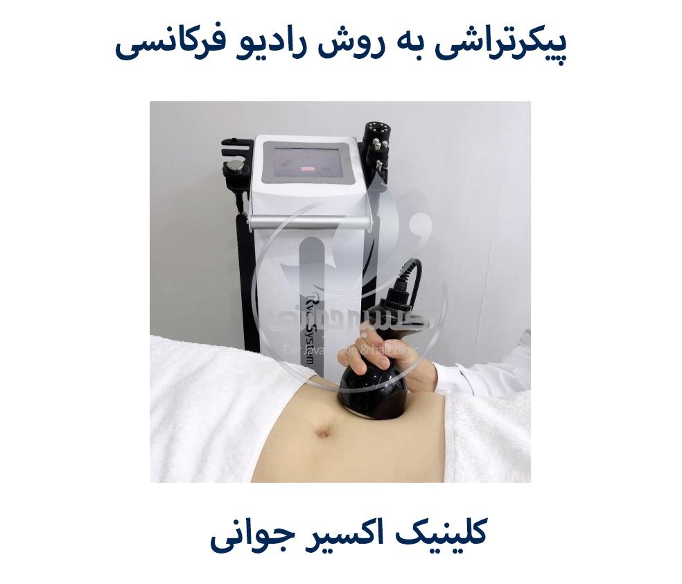 پیکرتراشی به روش رادیو فرکانسی، پیکرتراشی به روش رادیو فرکانسی در کلینیک اکسیر جوانی مشهد