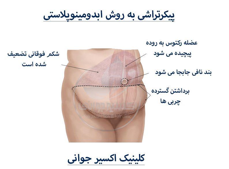 پیکرتراشی به روش ابدومینوپلاستی، روش ابدومینوپلاستی، لاغری به روش روش ابدومینوپلاستی