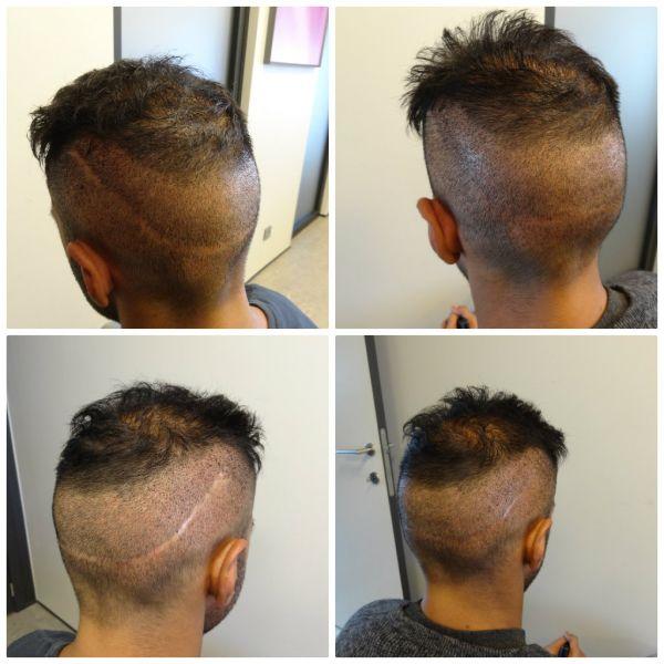 روش کاشت موی bht، کاشت مو به روش bht، کاشت مو به روش bht در کلینیک اکسیر جوانی مشهد