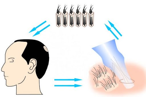روش کاشت موی fit، روش کاشت موی fit چیست، کلینیک اکسیر جوانی مشهد، کاشت موی اکسیر جوانی مشهد