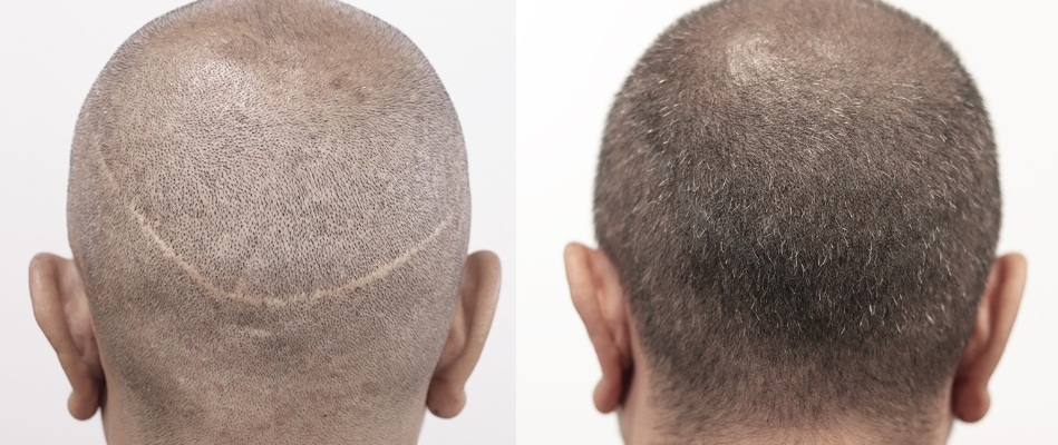 روش کاشت موی fut، بهترین روش کاشت موی futف روش کاشت موی fut چیست؟، روش کاشت موی fut، کاشت موی کلینیک اکسیر جوانی