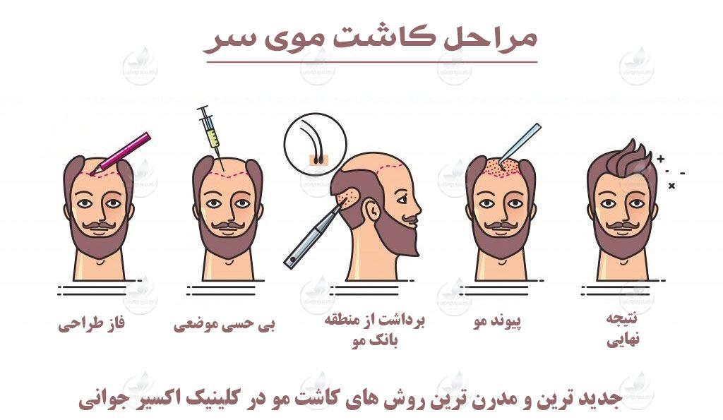 مراحل کاشت موی سر، مراحل کاشت موی سر در ایران، کاشت موی سر چگونه است، کاشت موی سر چیست، کاشت موی سر کلینیک اکسیر جوانی مشهد