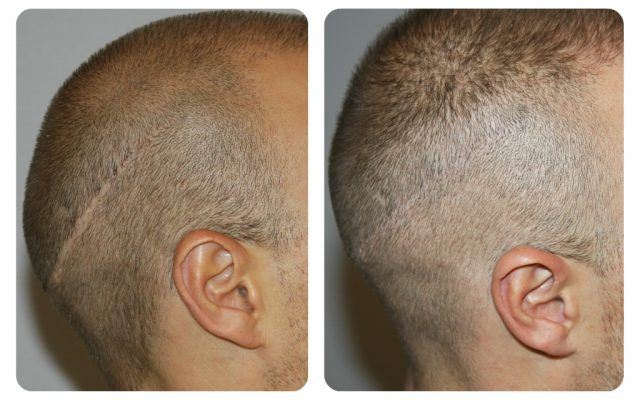 کاشت مو به روش MFIT، کاشت مو به روش Micro FIT، کاشت موی کلینیک اکسیر جوانی مشهد