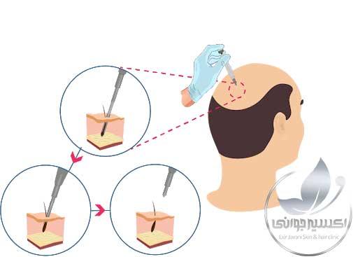 کاشت مو به روش SUT، کاشت موی SUT، نحوه کاشت مو SUT، مراحل کاشت موی به روش SUT