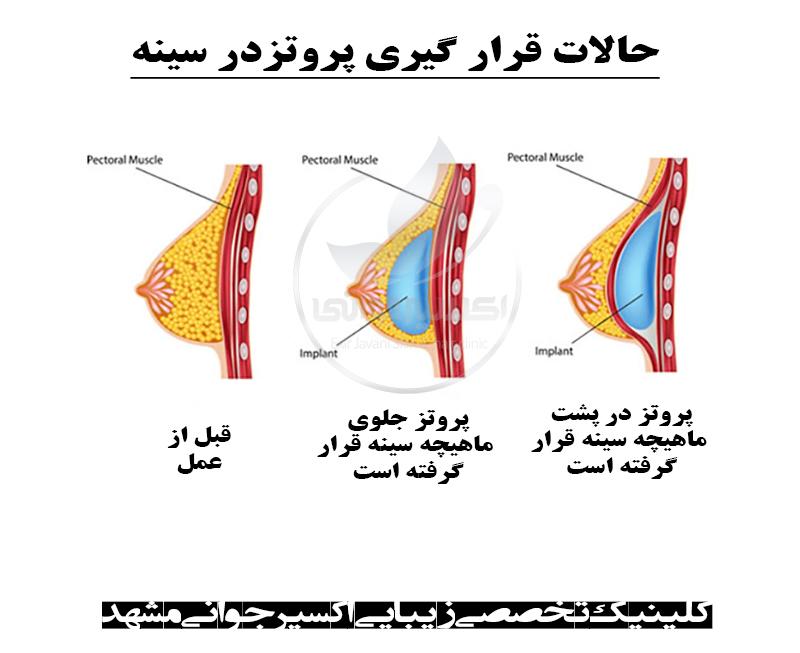 عوارض پروتز سینه، عوارض پروتز سینه چیست، عمل پروتز سینه چه عوارضی دارد، عوارض پروتز سینه در بلند مدت چیست؟