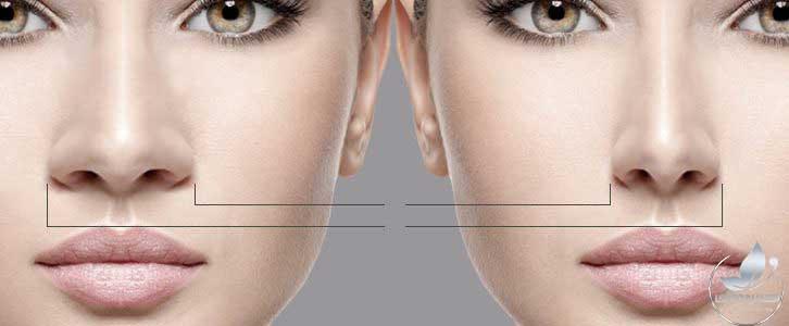 عمل بینی، صفر تا صد عمل بینی، عمل بینی گوشتی، جراحی زیبایی بینی، عمل انحراف بینی