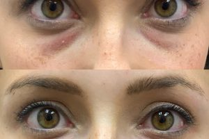 PRP BEFORE-AFTER