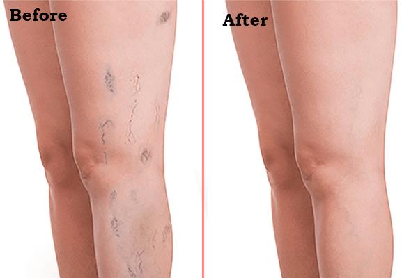 spider veins treatment