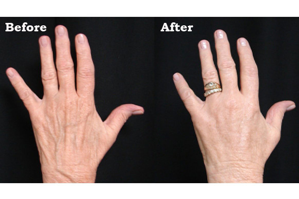 fat injection for hands