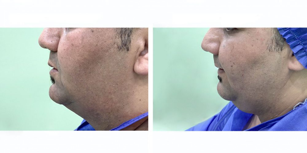 Before and after double chin suction